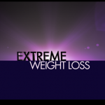Try Out to be on ABC 'Extreme Weight loss'
